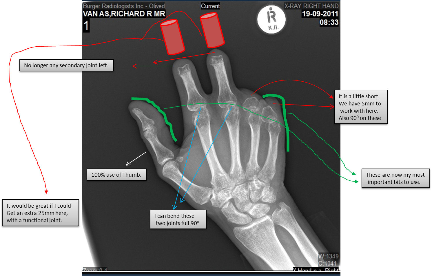 http://robohand.files.wordpress.com/2013/04/image007.png